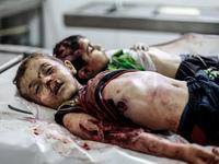 An Israeli air strike near an ambulance in the Gaza City